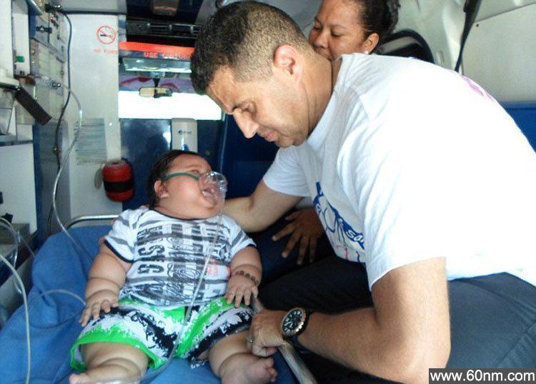 惊!哥伦比亚8月大男婴重达40斤_大千世界