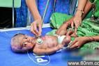 印度男婴罕见古怪 出生3月已自燃4次_大千世界