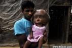 印度女童患脑积水比外星人更像外星人_大千世界
