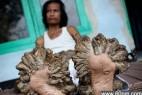 """十大科学无解怪异疾病:印尼""""树人""""_大千世界"""