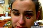 隐形眼镜藏变形虫 少女眼角膜被蚕食险失明(图_大千世界