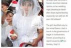 也门8岁新娘出嫁 初夜下体出血而死_大千世界