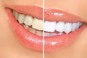 免洗牙,教你5分钟消除牙垢 !! 太棒了 必看!欢迎转分享.........